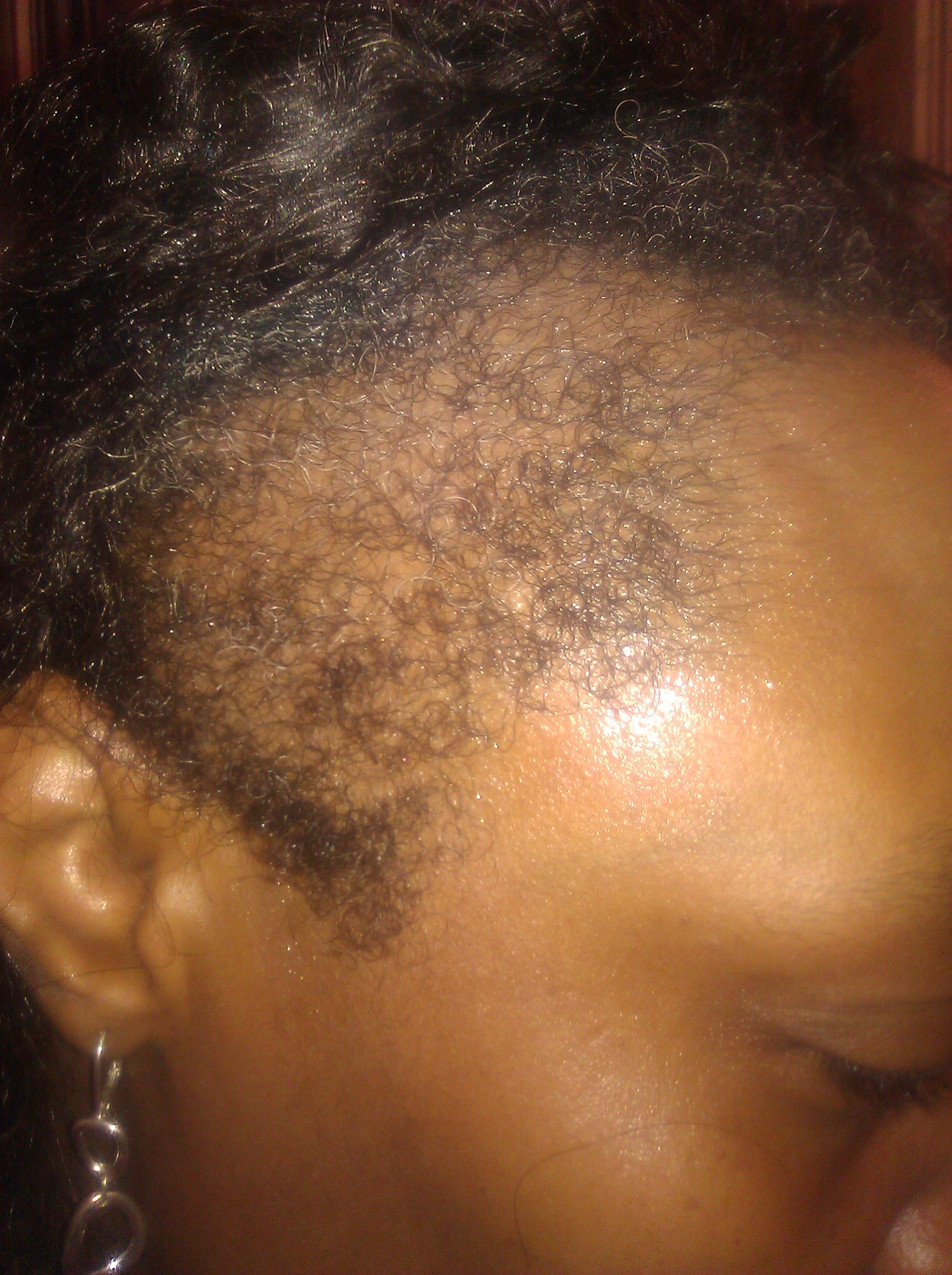 This is what mama dukes hairline looked like when we started
